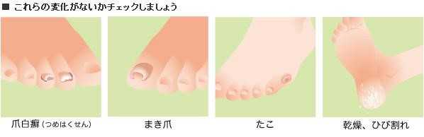足の変化チェックシート