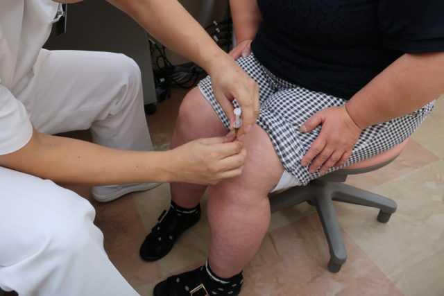 ひざのPRP治療の効果-02