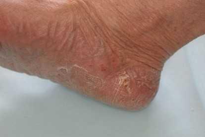 皮膚感染症の主な症状