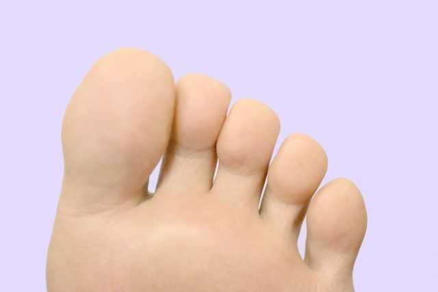 糖尿病の人は爪白癬になりやすい|足を守るために症状や原因を知る