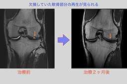 幹細胞の投与前と投与後のMRIの比較画像