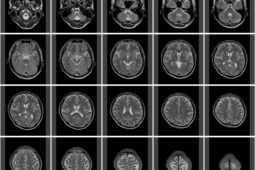 脳梗塞の再生医療
