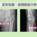 変形性膝関節症と変形性股関節症に対する幹細胞治療
