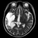 脳出血に対する再生医療