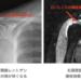70代女性 右肩腱板損傷に対するPRP治療