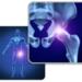 60代女性 右股関節と左膝が痛い!